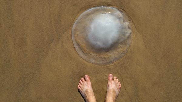 treat a jellyfish sting